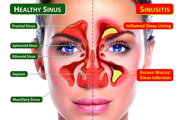 Sinus Areas and Sinustis